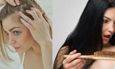 Vashiány okozta rémálom: a hajhullás